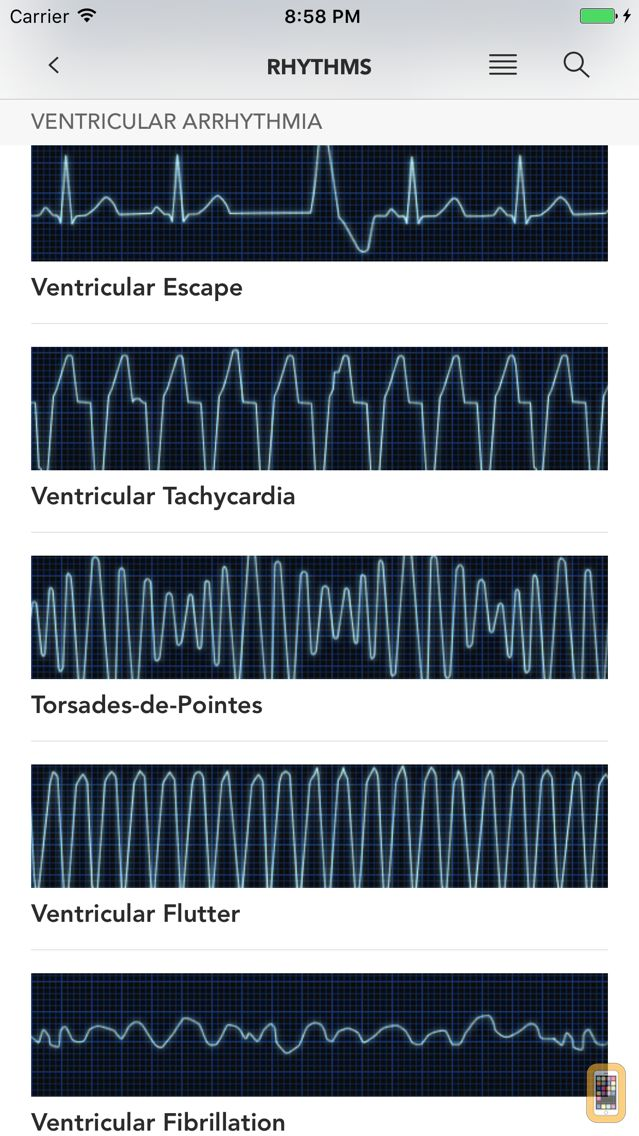 Screenshot - Instant ECG - Mastery of EKG