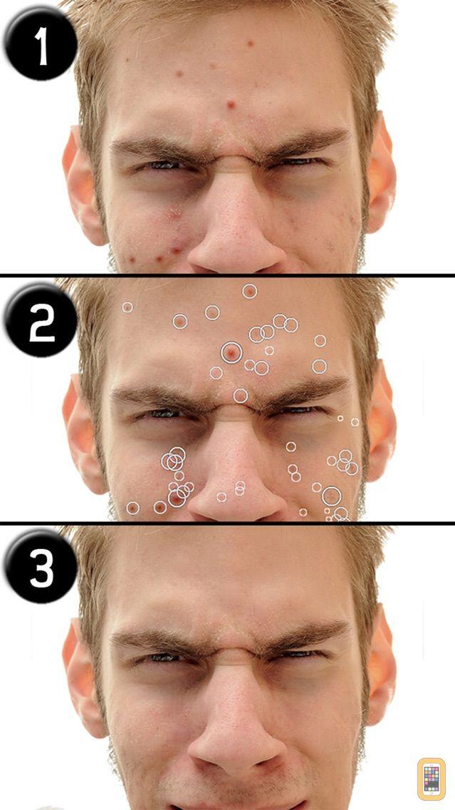 Screenshot - Pimple Eraser